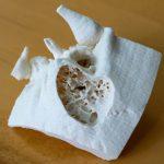 Intraoperativer 3D-Druck eines Mastoidknochens, hergestellt mit einem Prusa I3 MK3S Drucker