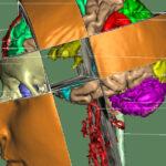 SIGGRAPH 1992: 3D Anatomischer Atlas des menschlichen Kopfes