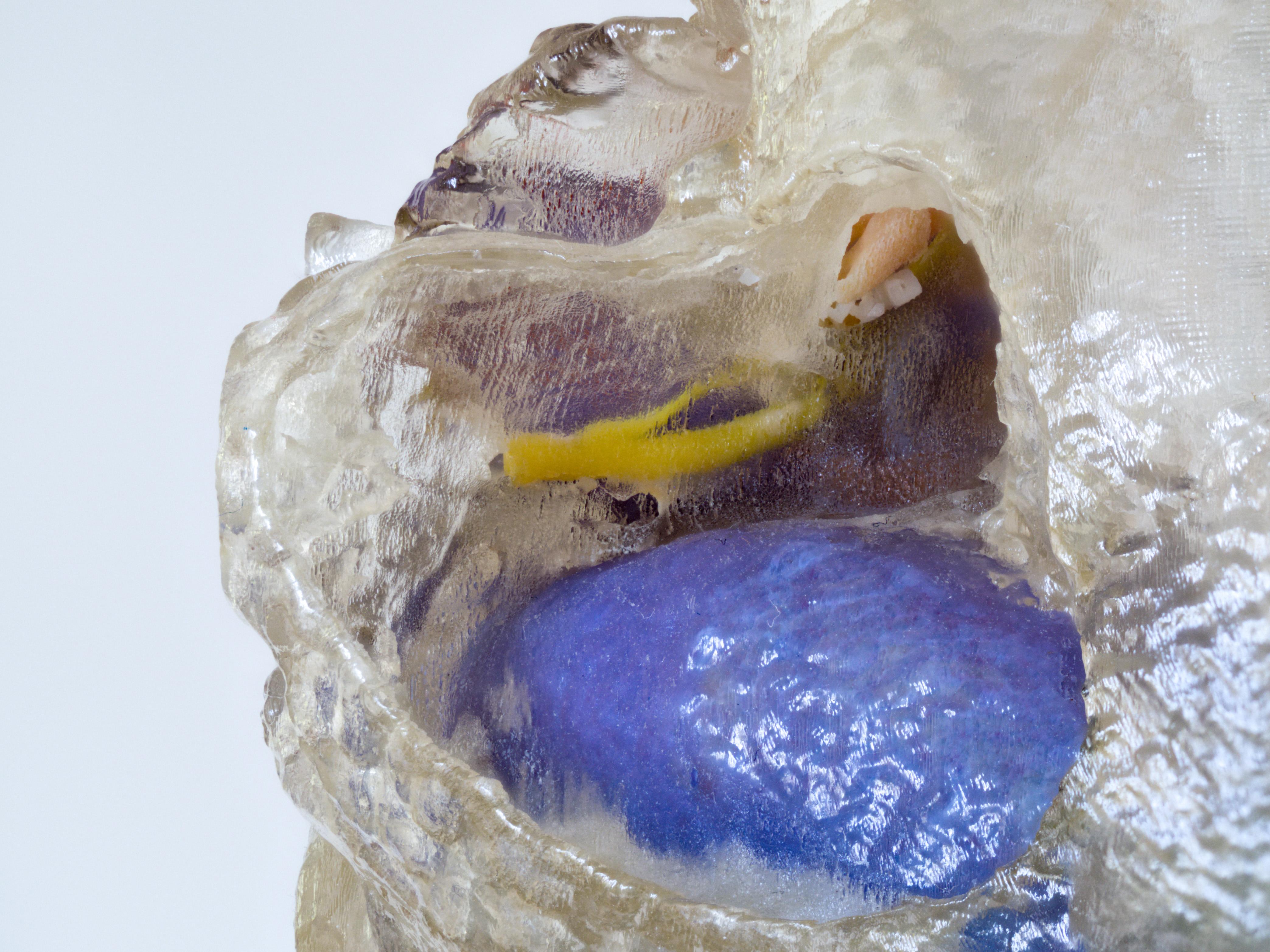 3D-gedrucktes Schläfenbein mit verschiedenen Risikostrukturen