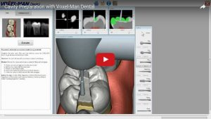 Kavitätenpräparation mit Voxel-Man Dental