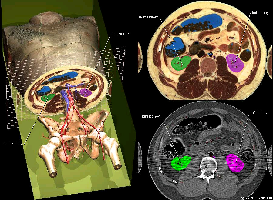 CT und Schnittbildanatomie des Rumpfes