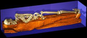 Mediansagittalschnitt durch die Mumie von Mr. X, Kestner-Museum Hannover