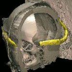 Kranz der Rechtfertigung der Virtuellen Mumie