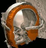 Leinenwicklungen der Virtuellen Mumie