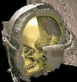 Schädel der Virtuellen Mumie
