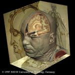 Kopf des Visible Human nach Leonardo da Vinci