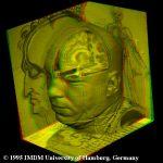 Virtuelle Präparation des Kopfes des Visible Human in Rot/Grün-Stereo
