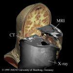 Bildgebende Verfahren wie Röntgen, CT und MRT zeigen verschiedene Aspekte der Anatomie des Visible Human
